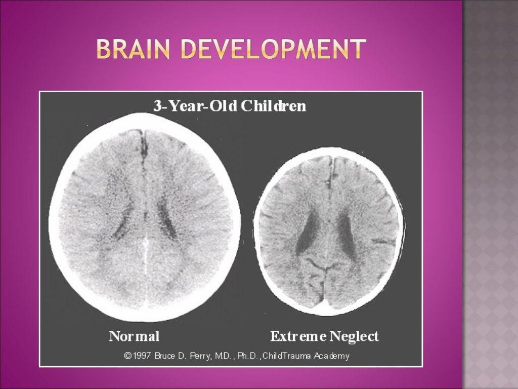 Early Childhood Trauma And Brain Development