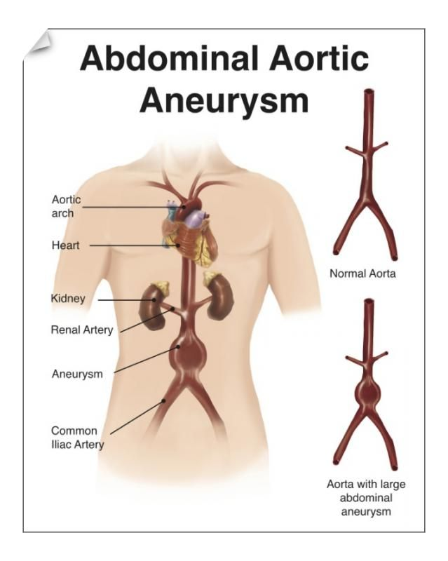 28+ 25cm Photo. Artist depcition of abdominal aortic aneuryism with