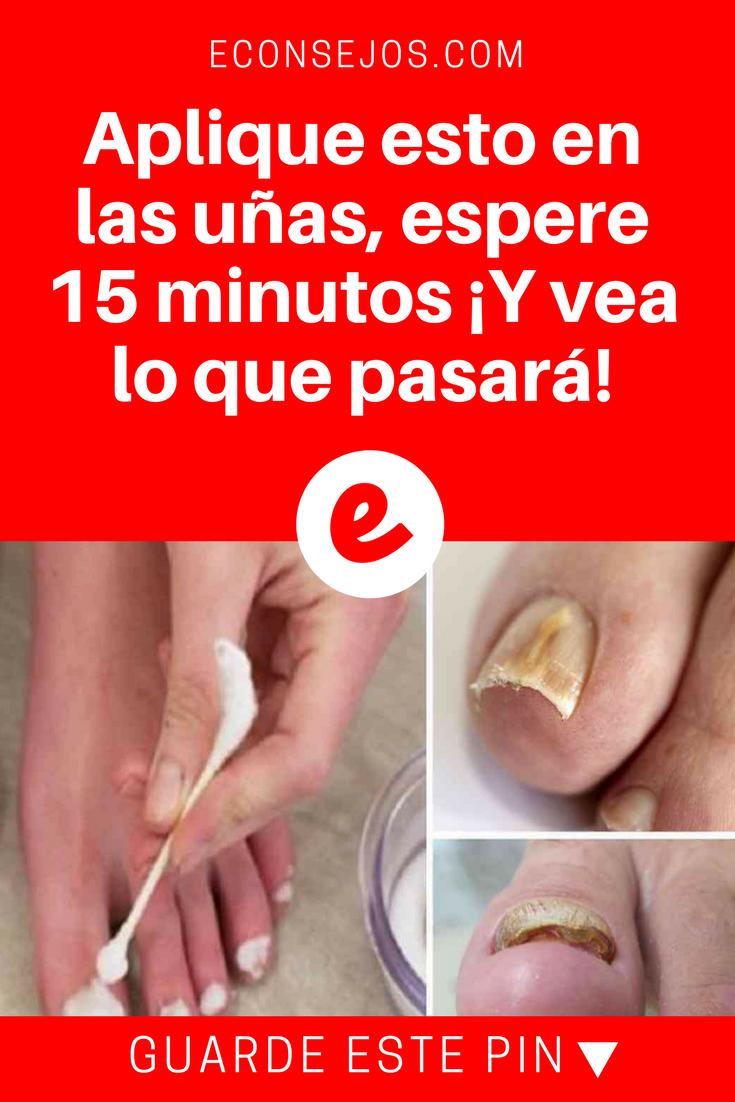 Aplique esto en las uñas, espere 15 minutos ¡Y vea lo que pasará ...