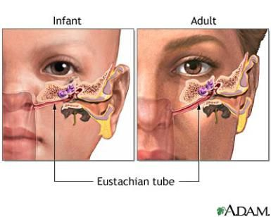 How to Tell If Your Child Needs Ear Tubes | Health and fitness | Ear