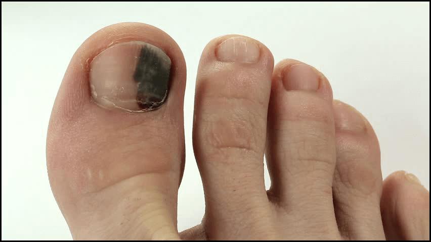7 Proven Ways To Get Rid Of Black Toenail Fungus Black Toenail Fungus Toe Nails Toenail Fungus