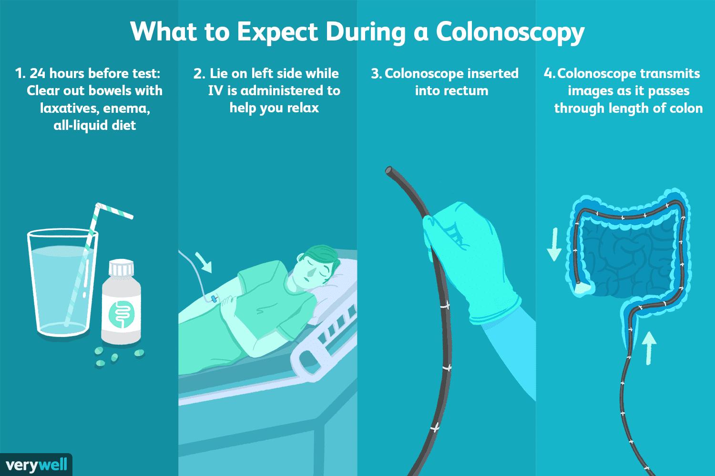 Prepare Yourself Before Having a Colonoscopy Procedure