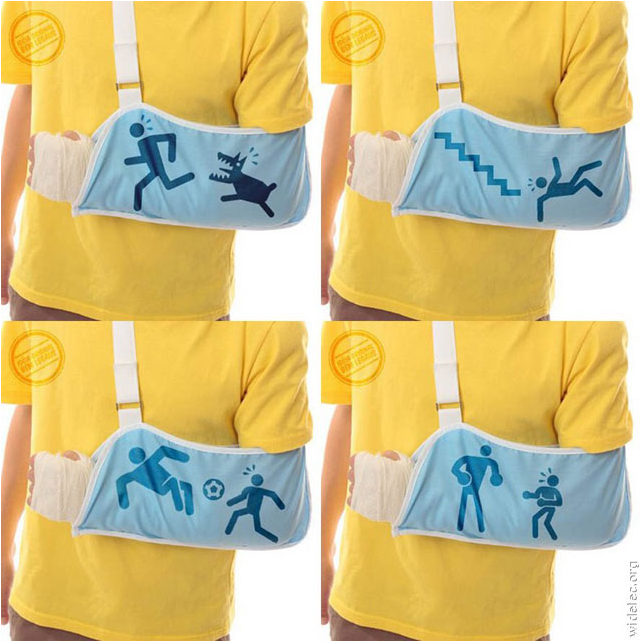Annoyed by people asking how you broke your arm? Problem solved.
