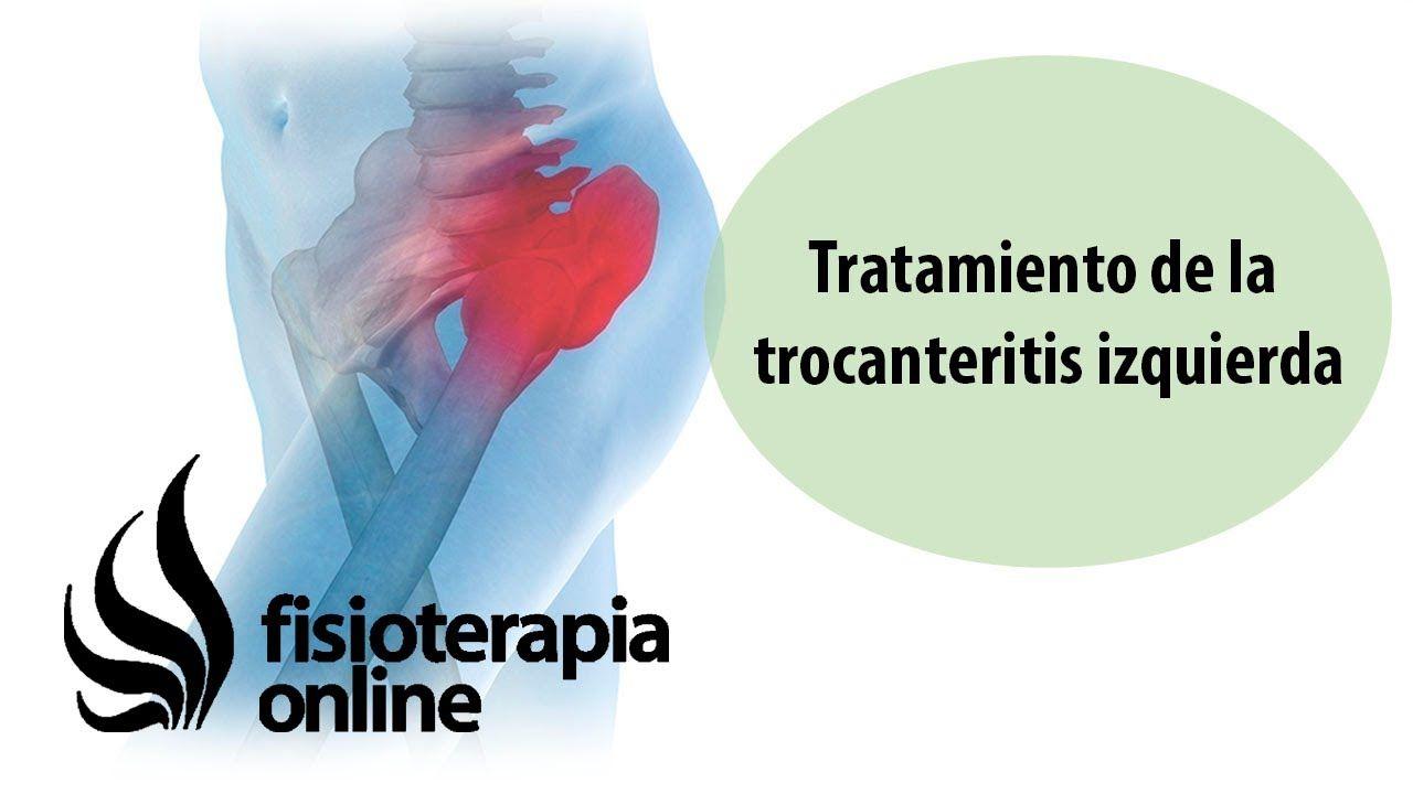 Tratamiento de la trocanteritis izquierda - Trocanteritis..