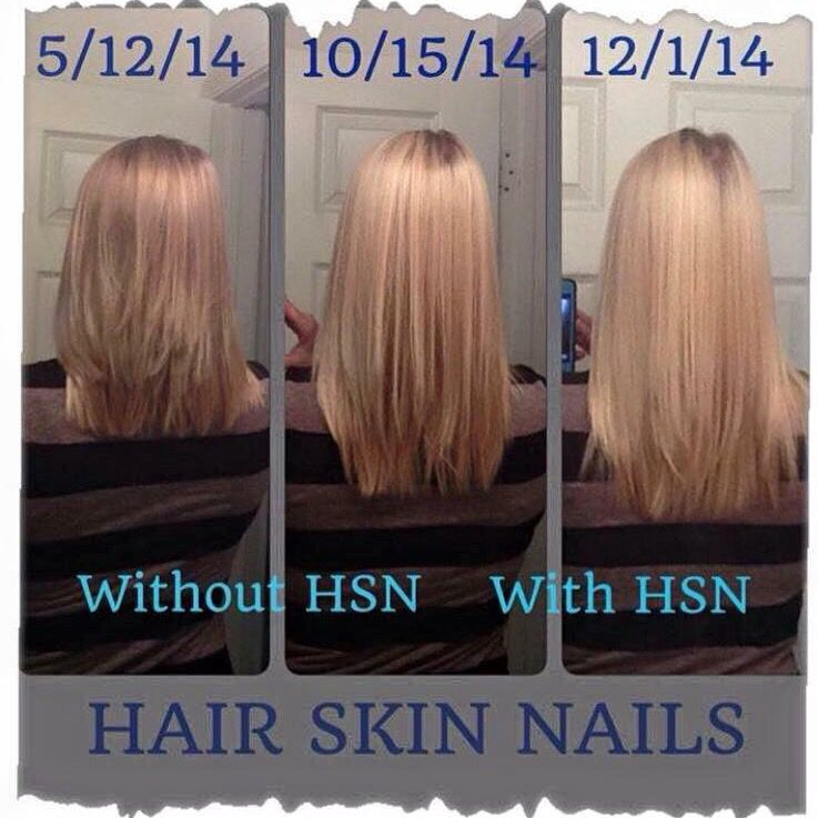 Hair thin? Lifeless? Won\'t grow? Well the It Works! Hair skin and ...
