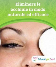 Photo of Eliminare le occhiaie in modo naturale ed efficace — Vivere …