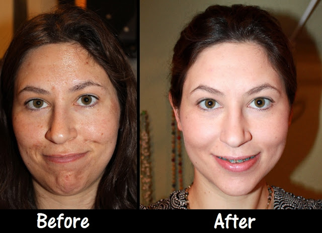 Photo of Chemical Peel Before & After