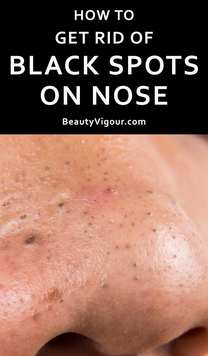 How To Get Rid Of Acne Holes On Nose