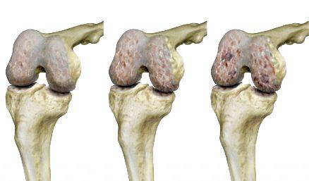 az ívek artrózisának diagnosztizálása kenőcs az ujjak ízületének fájdalmára