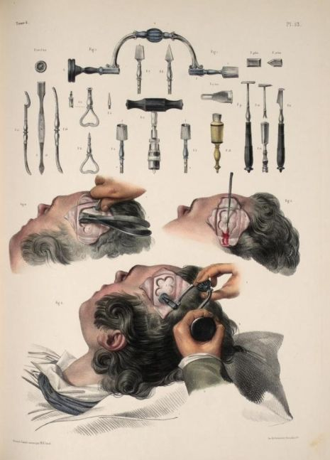 Horrifyingly detailed images of surgical procedures from the early ...
