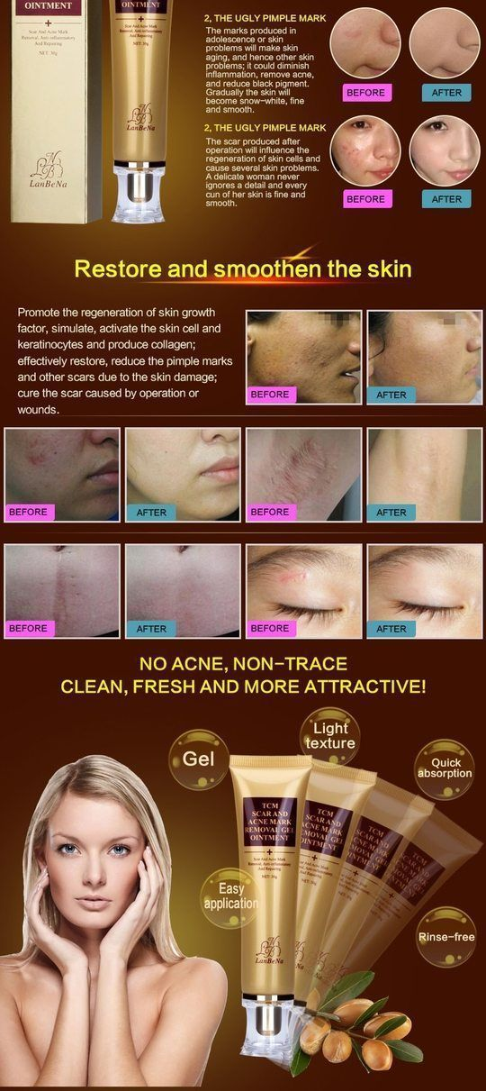 Acne Scar Remover Cream AcneRemedies