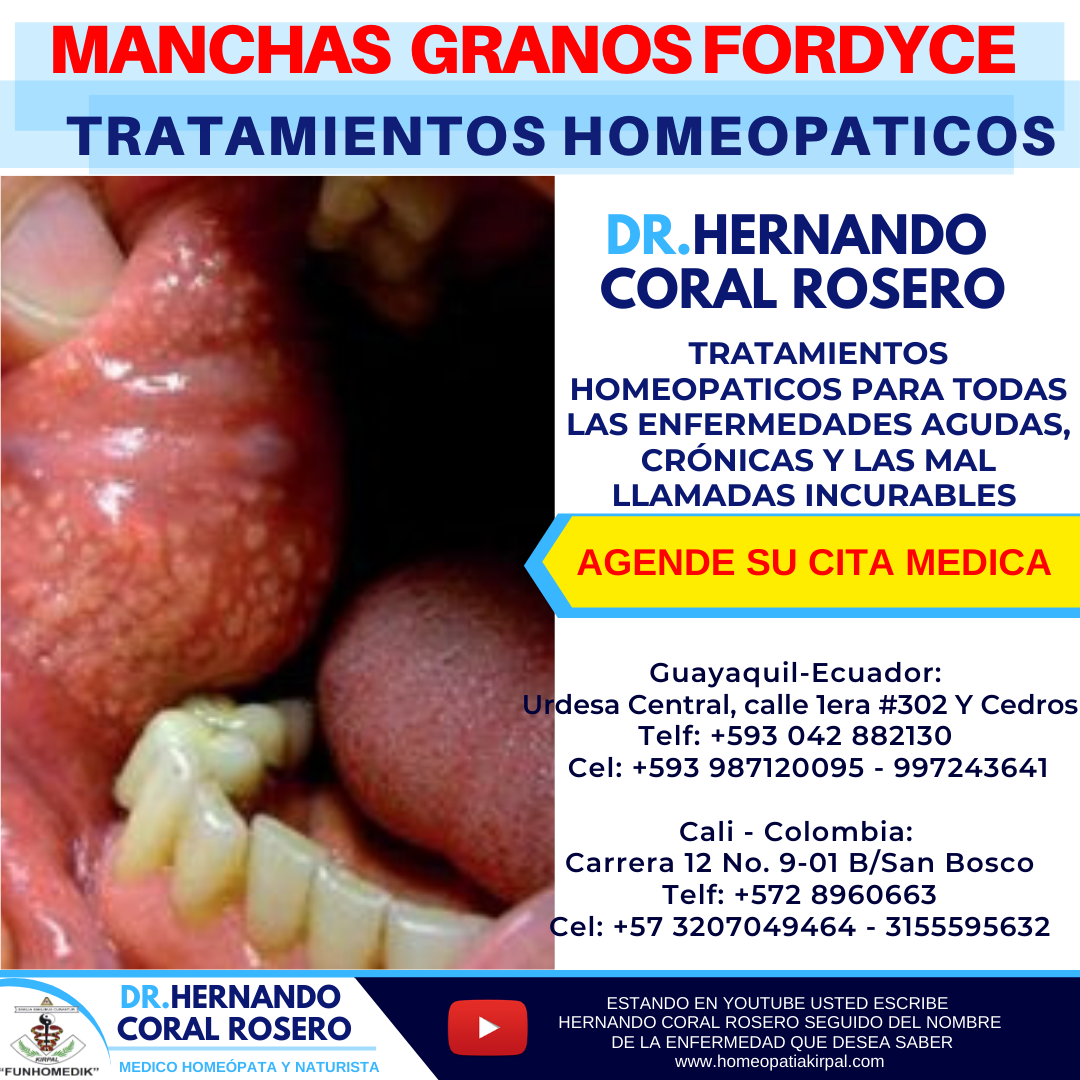 Pin On Manchas Y Granos Fordyce
