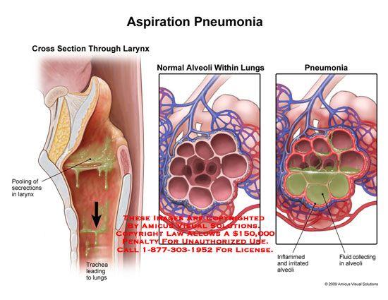Pneumonia, Aspiration