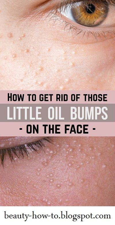 d05536b94fbfaadae0ca20ab46dd7aaa - How To Get Rid Of Hard White Bumps On Face