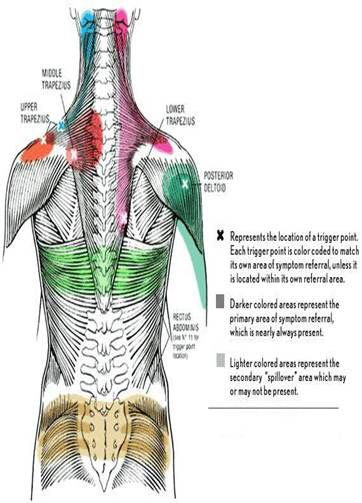Trigger Point Therapy What Is It And How Does It Work