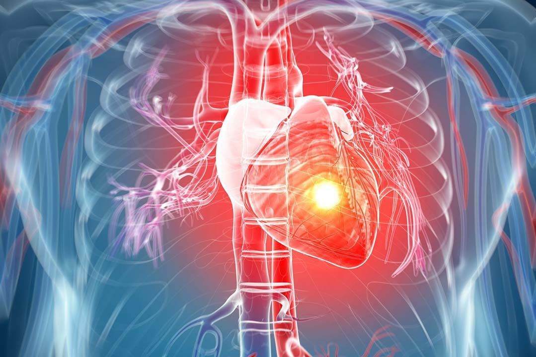 Definition and Risk Factor for Acute Myocardial Infarction