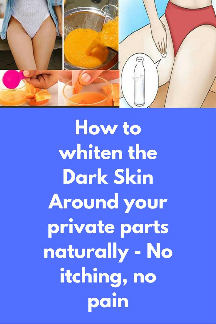 d0591784c1555d64c6fb0123003cf7ab - How To Get Rid Of Dark Skin Near Private Parts