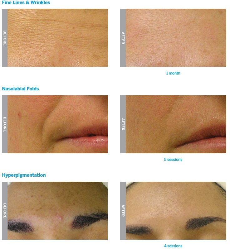 Hydrafacial Before And After 1 Scottsdale Facial Affordable Skin Care Skin Hydrafacial Before And After