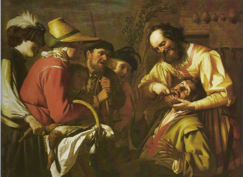 Gerard Van Honhorst Painting showing a dentist pulling a tooth with onlookers and no local anesthesia. #dentistry #baroque #novocaine