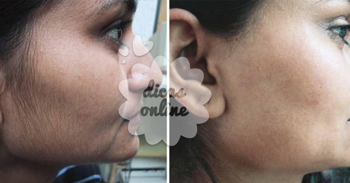 Fantástico! Remova pelos faciais para sempre com esta receita de 15 minutos! - # #pelosfaciais