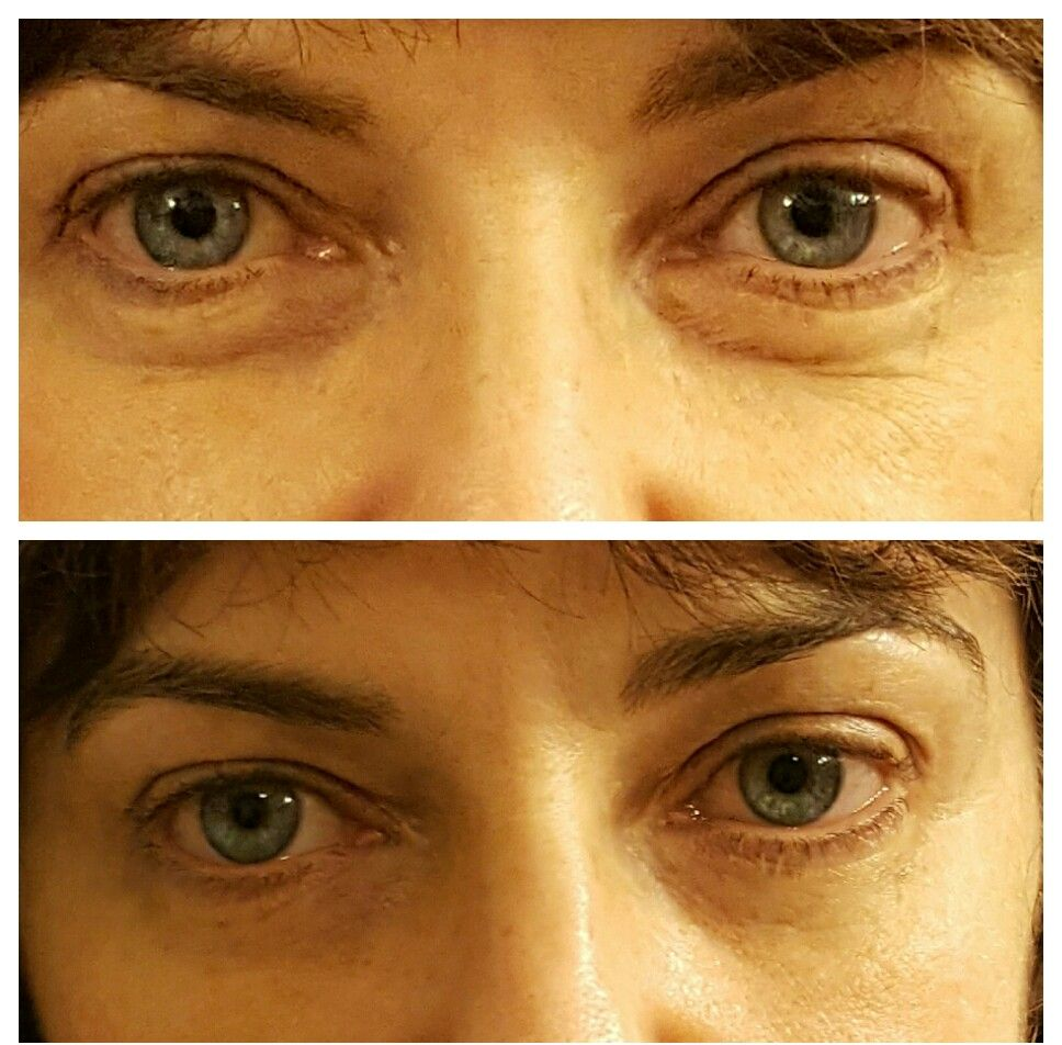 Resultado de imagem para Eye-V™ Moisture Boost Hydrogel Patches before and after