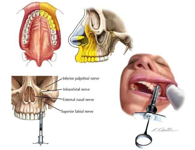 ANESTESIA DENTAL : Técnicas de anestesia troncular en el maxilar ...