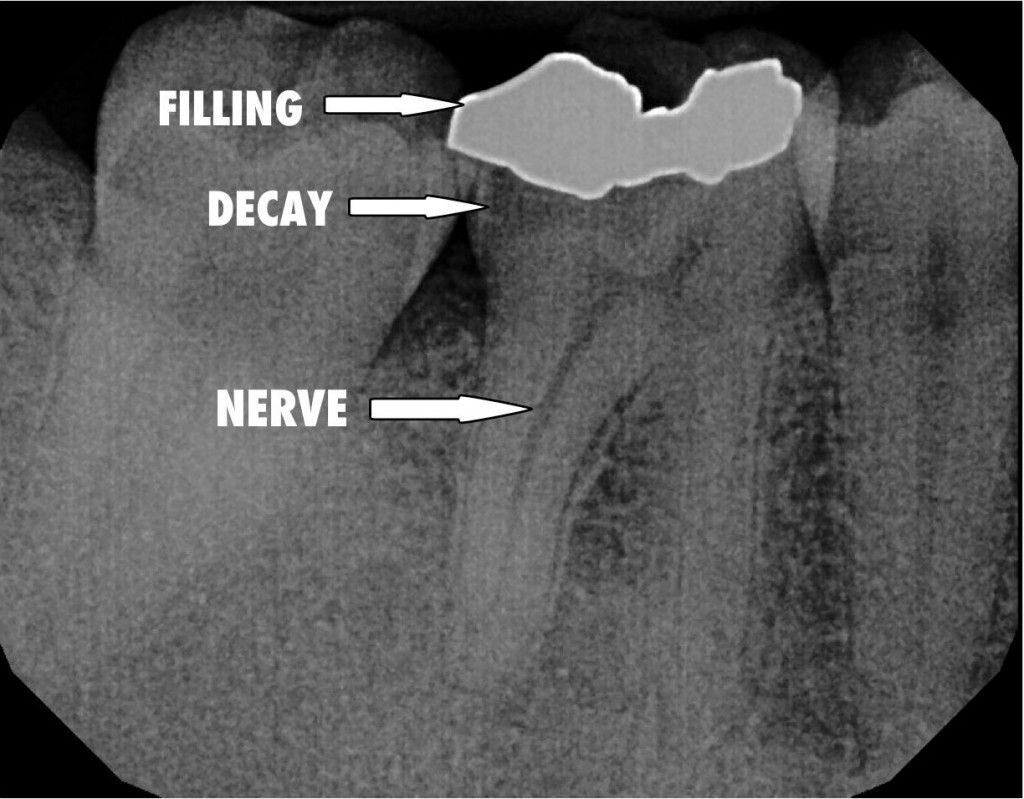 An xray of the tooth shows the filling the depth of the