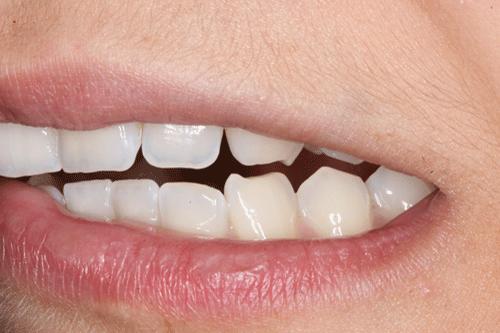 Solución Al Bruxismo Rechinar Y O Apretar Los Dientes Dolor De Cabeza Ortodoncia Odontología