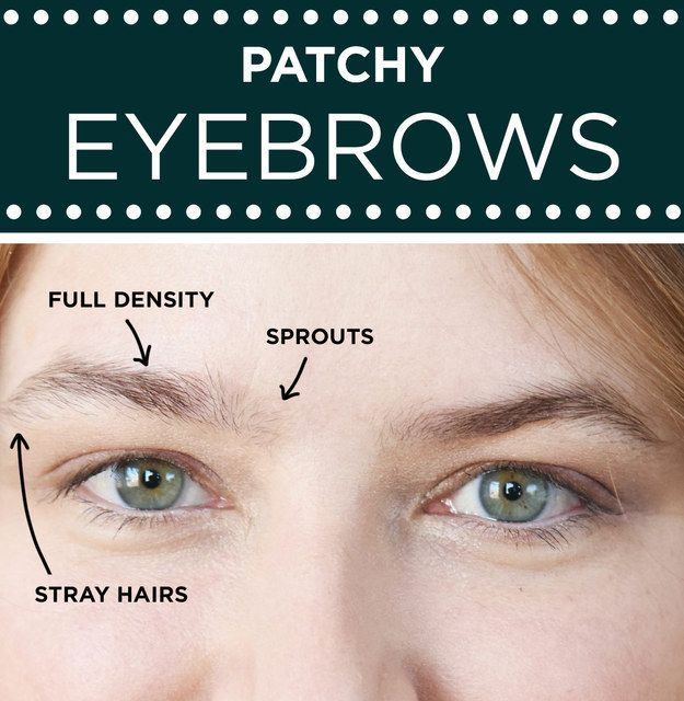 For Patchy Eyebrows Focus On Uniform Density Trending