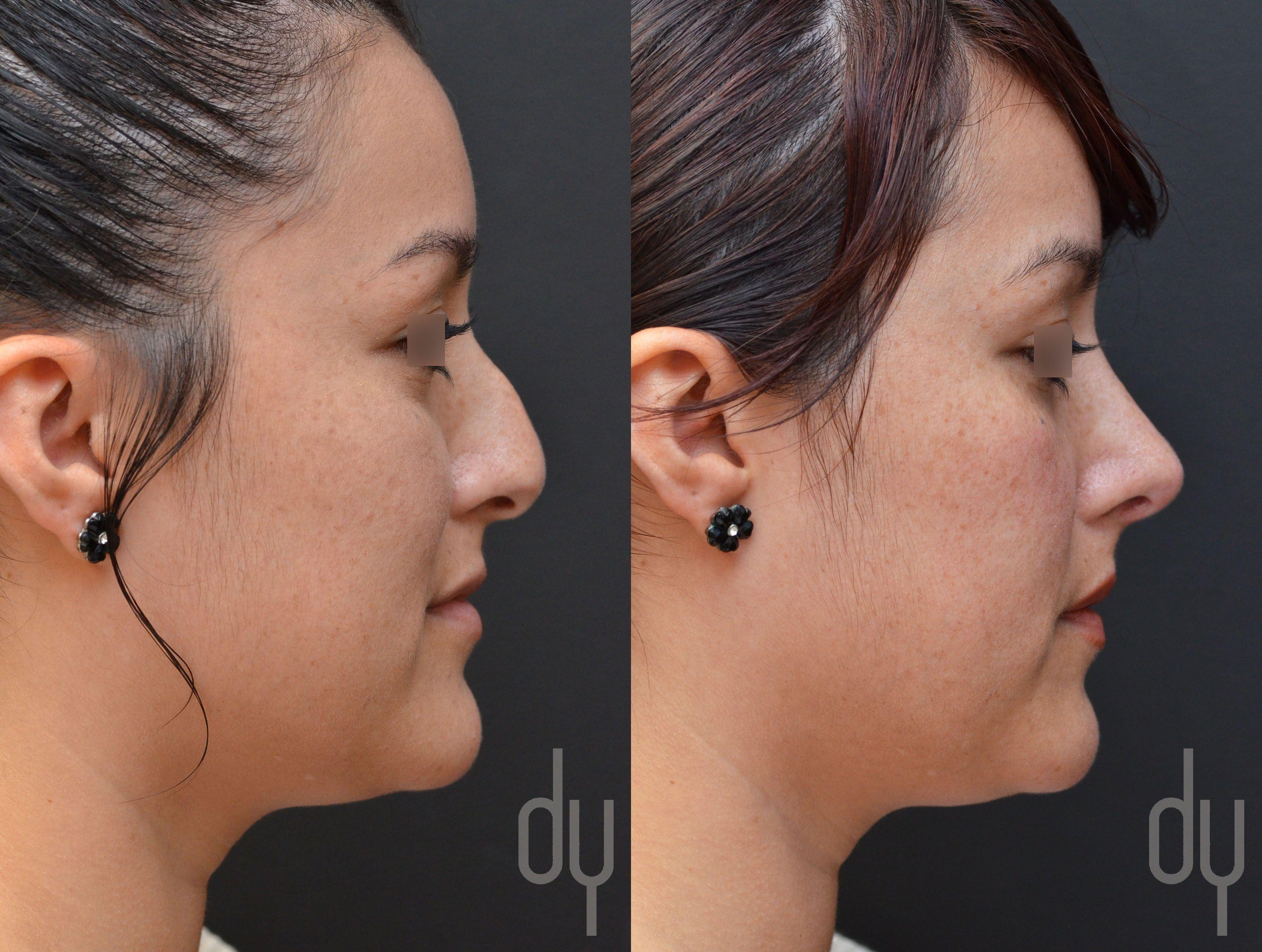 cheap non surgical nose job near me