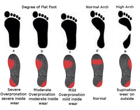 on shoes for overpronation