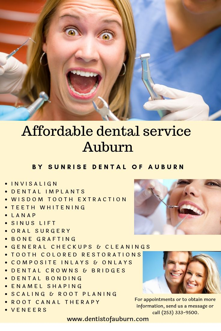 Affordable dental service auburn best dentist in auburn