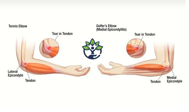 Tennis Golfer S Elbow Prevention Golfers Elbow Workplace Injury Tennis Elbow