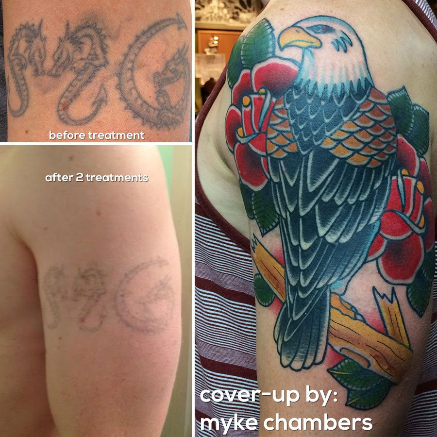 Fading a tattoo will give your artist the ability to cover