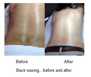 Back Waxing Before And After Www Lorifaith Com Skin Care Wax