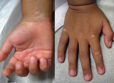 The White Patches On Hands Face And Back Of Body Vitiligo Vitiligo Vitiligo Treatment Vitiligo Cure