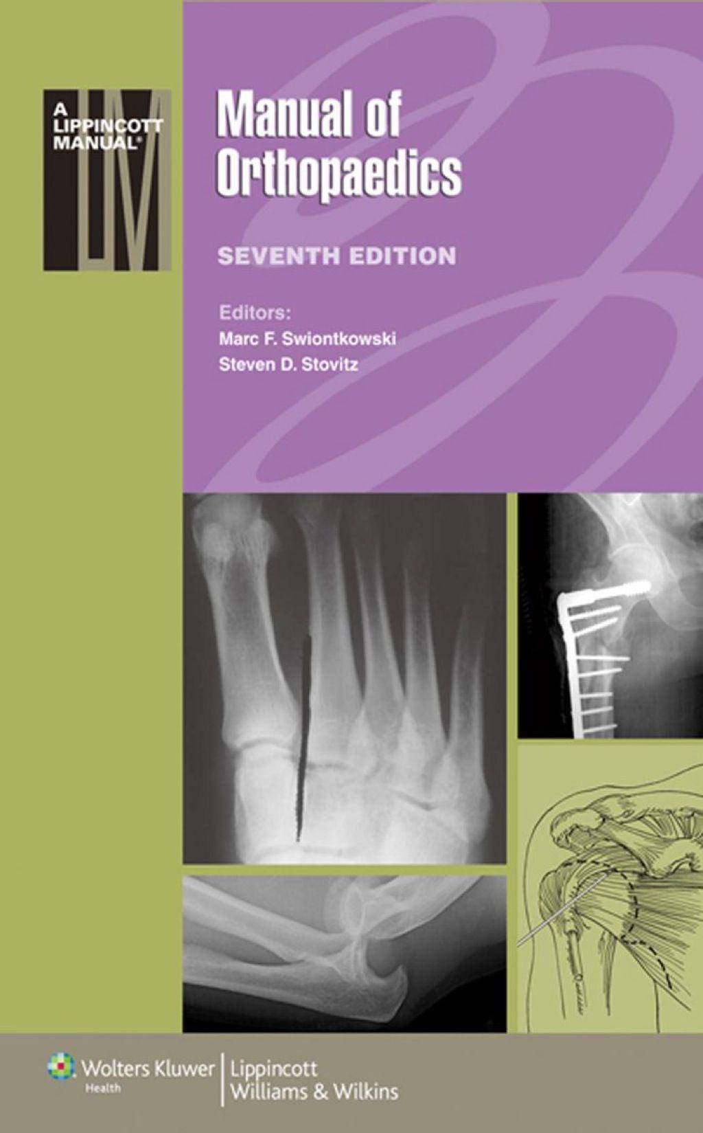 Manual of Orthopaedics (eBook Rental) Manual, Pdf, Ebooks