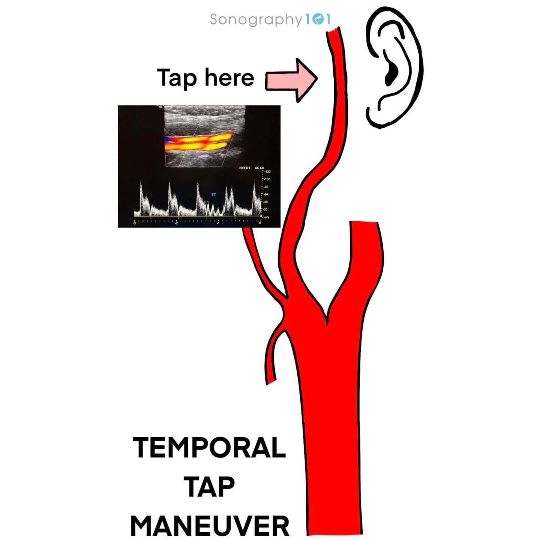 Temporal Tap Maneuver