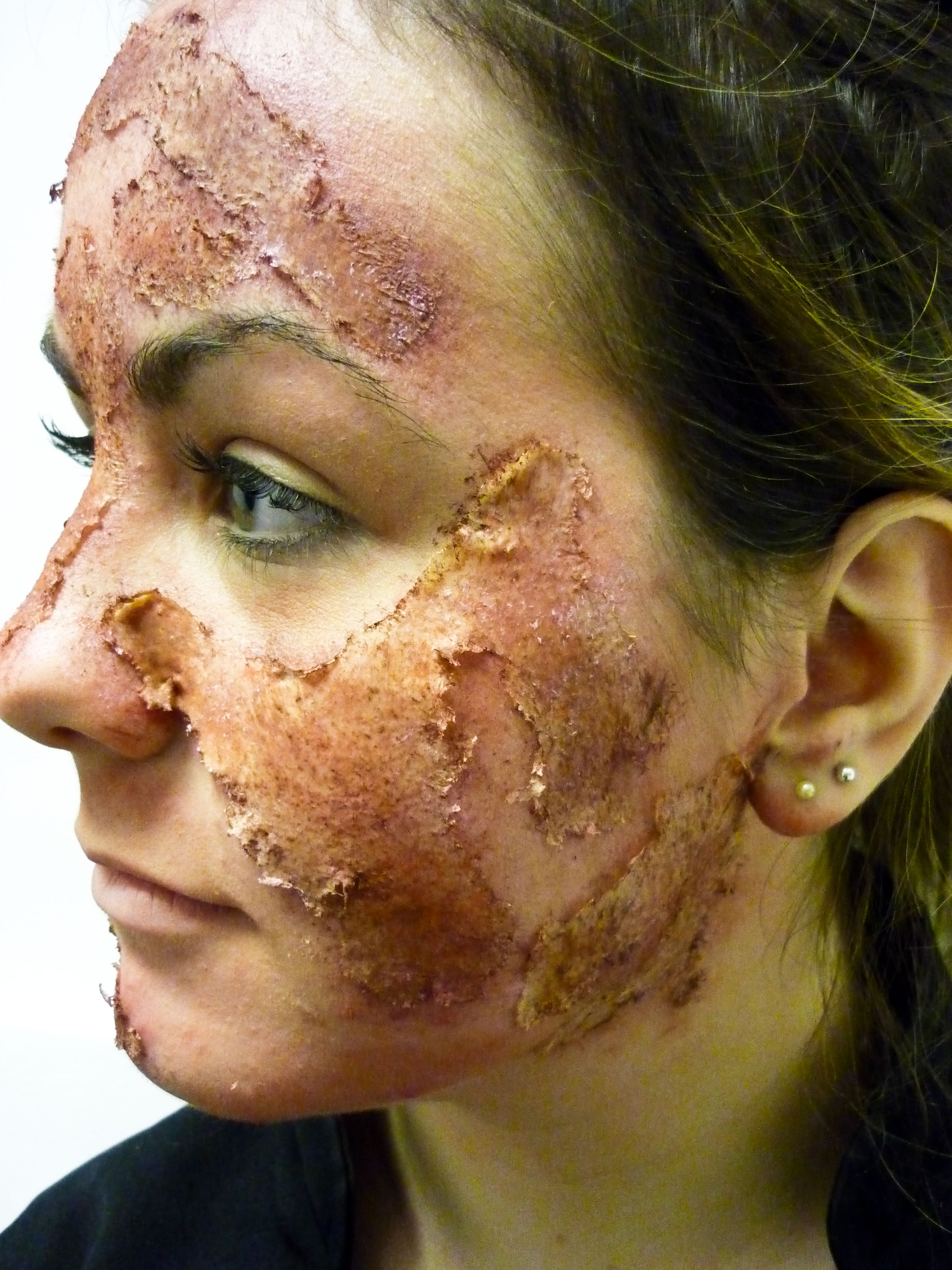 chemical burn makeup sfx | Moulage/Special FX | Pinterest ...