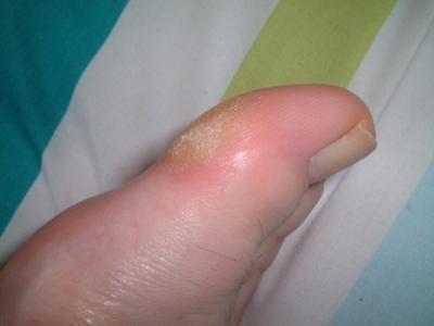 thick skin on big toe