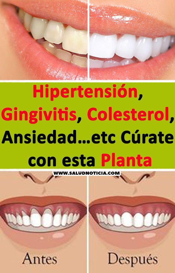 colesterol y salud gingival