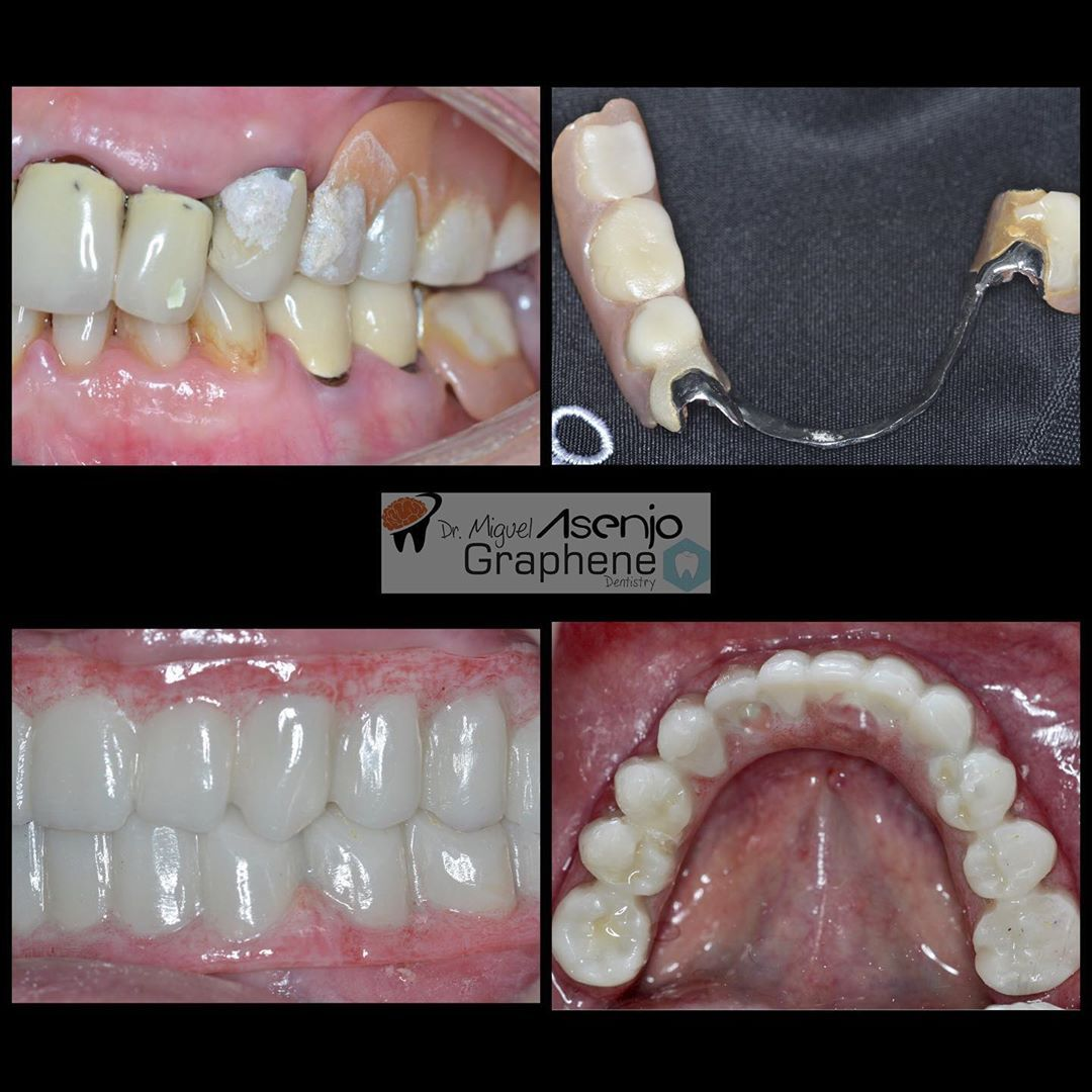 Dont Use More Partial And Removal Denture Its Time To Change It Full All On 4 Permanent Lower Dental Impl Teeth In A Day Denture Dentistry