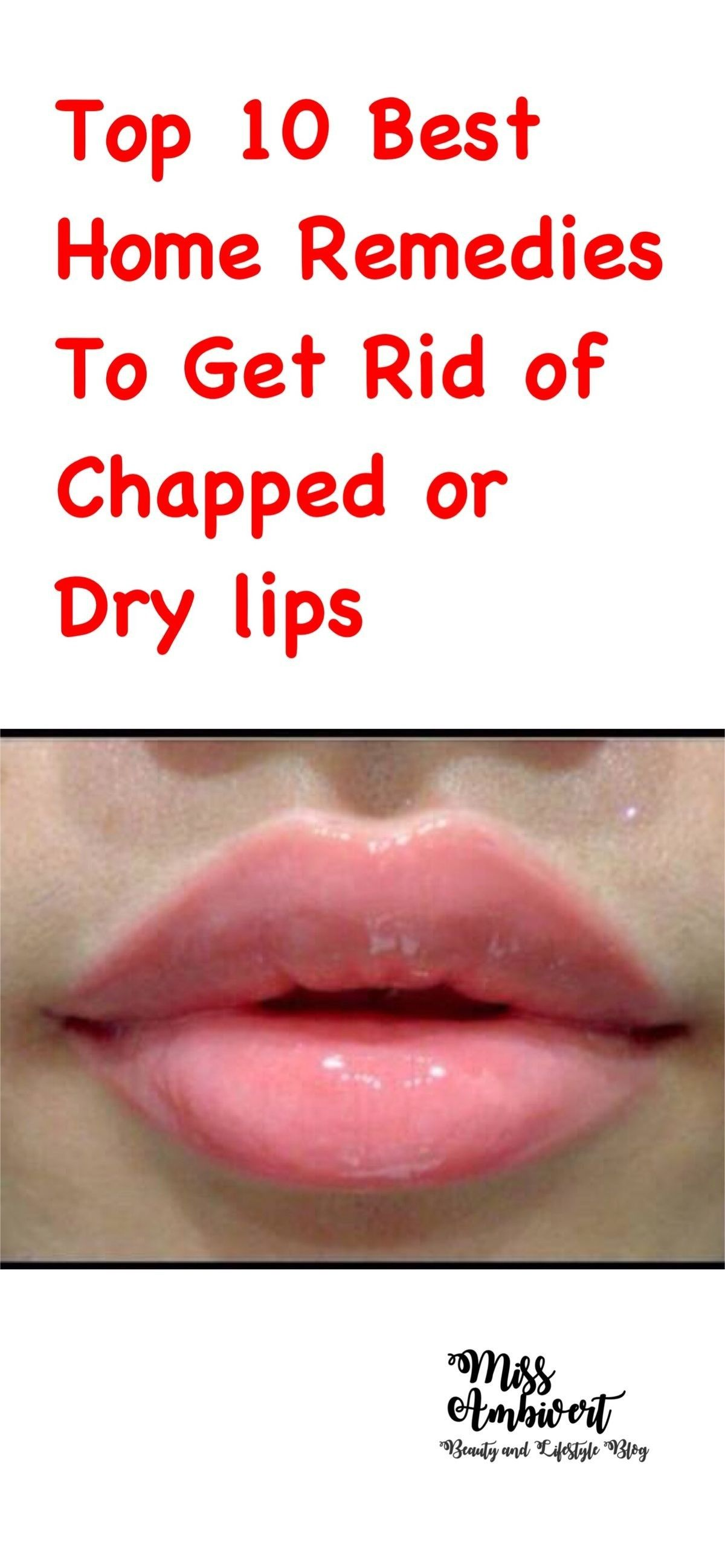 Chapped lips or cracked lips is a condition developed