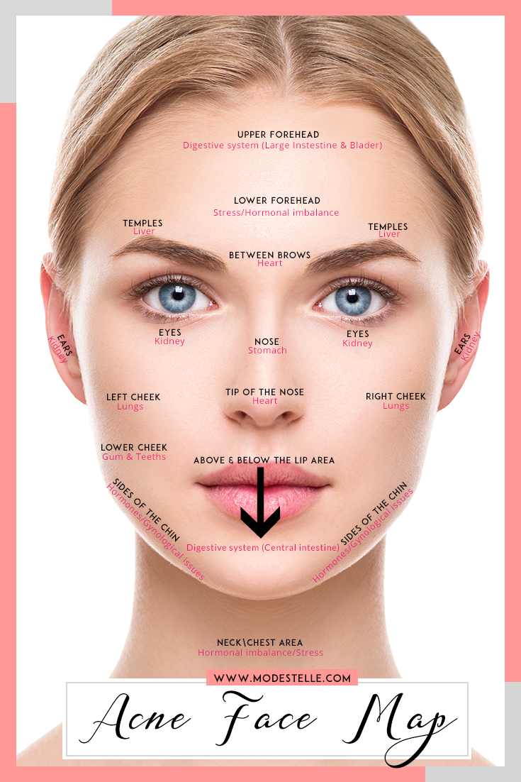 Are you frustrated from your acne saga pimple acne treatment are you frustrated from your acne saga acne treatmentsnatural treatmentshow to cure ccuart Images