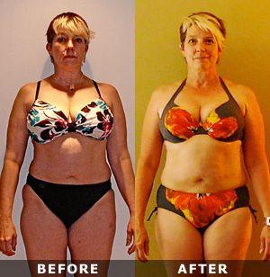 Weight loss by ayurvedic massage