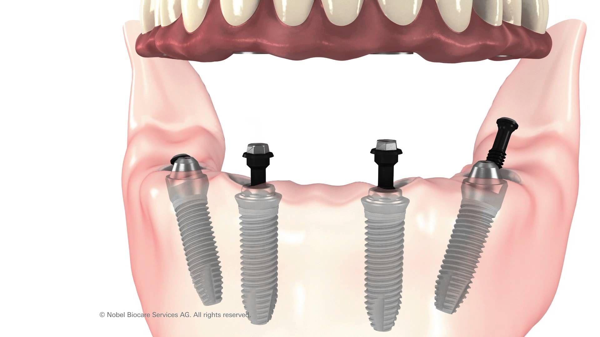 All on 4 dental implants cleveland secure loose dentures