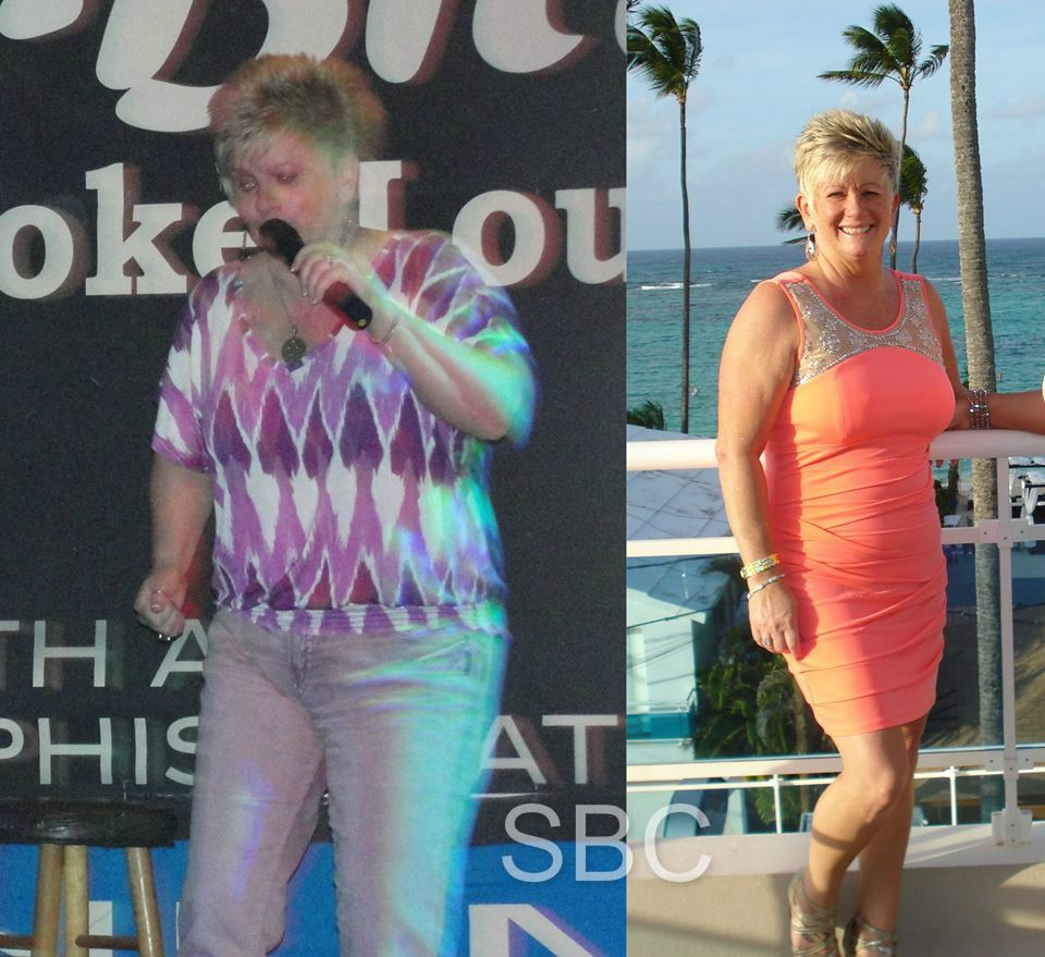 Weight loss diabetes causes photo 4