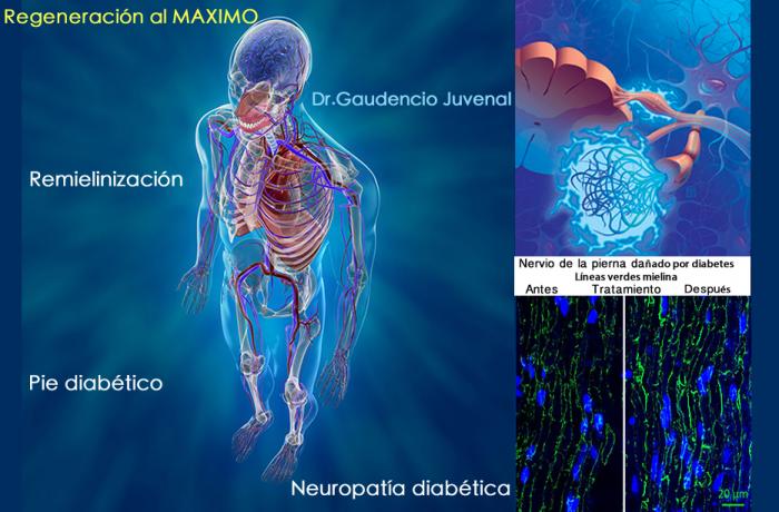 Endocrinología:  Diabetes Mellitus, centro de atención avanzada.