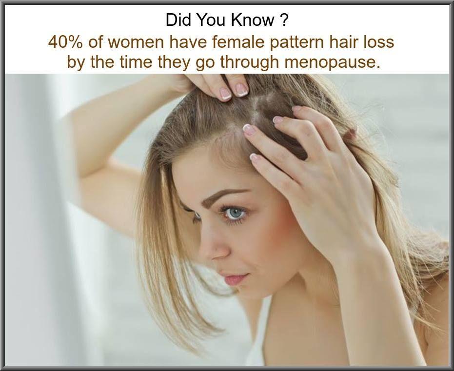 Fact_About_Women_Hair_Loss Female pattern baldness