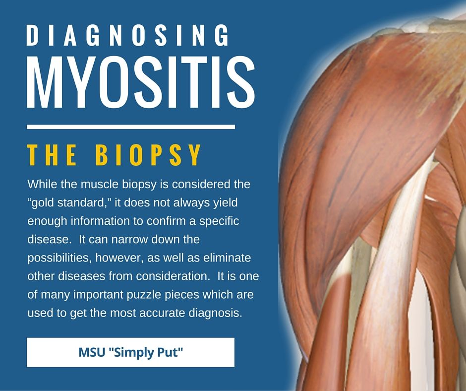diagnosing myositis | muscles, fibromyalgia and autoimmune, Muscles